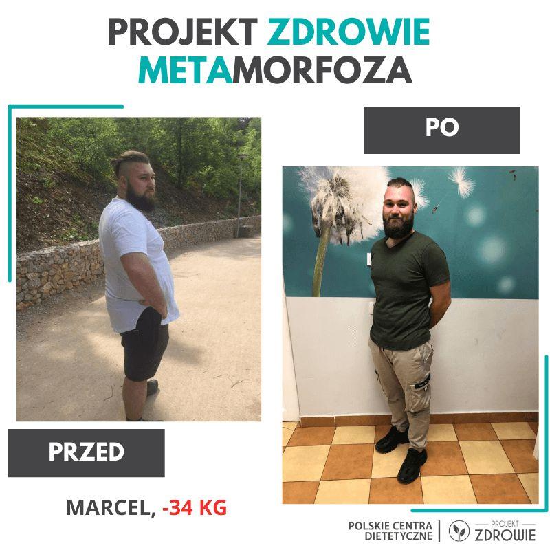 Metamorfoza PROJEKT ZDROWIE POLSKIE CENTRA DIETETYCZNE - efekt PRZED i PO