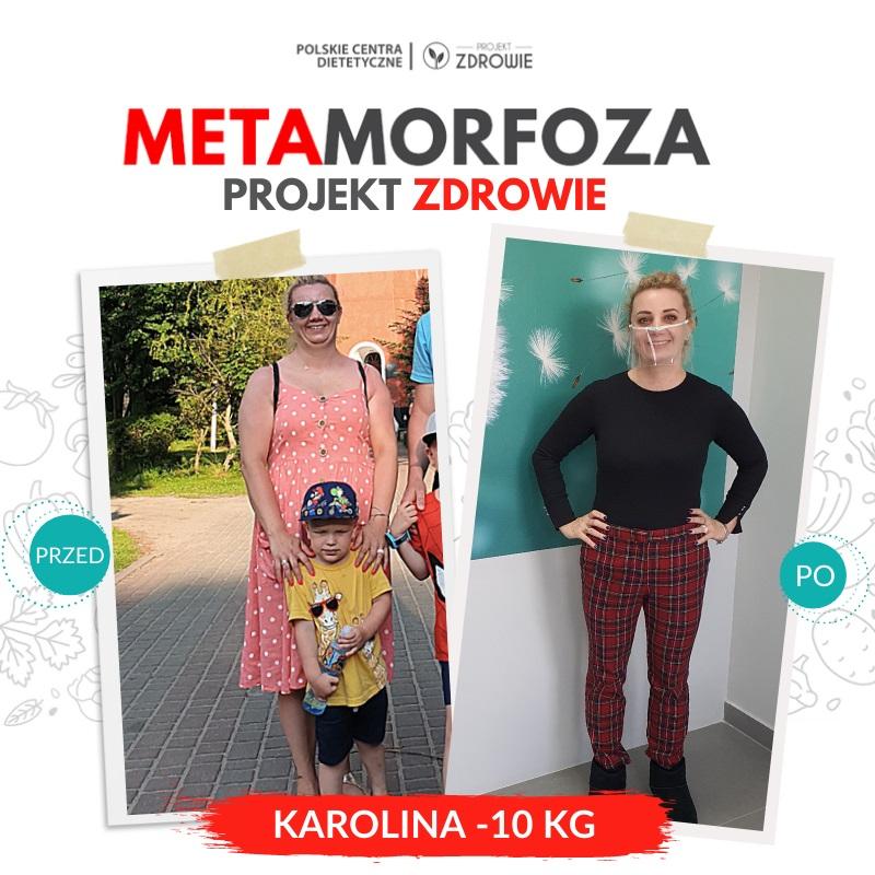 Metamorfoza Pani Karoliny - Projekt Zdrowie